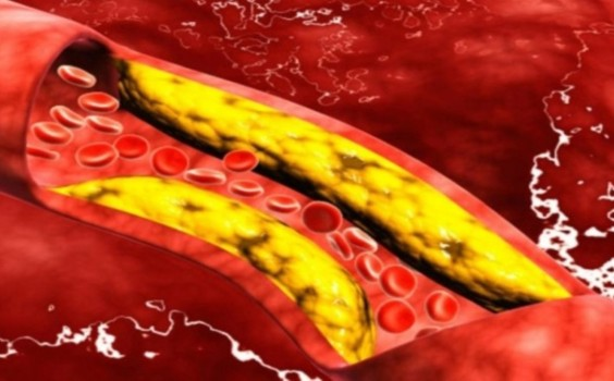trigliserida-lemakk